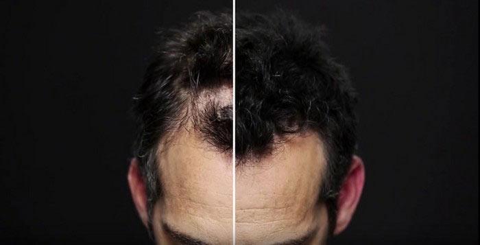 toppik-hair-fibers-2